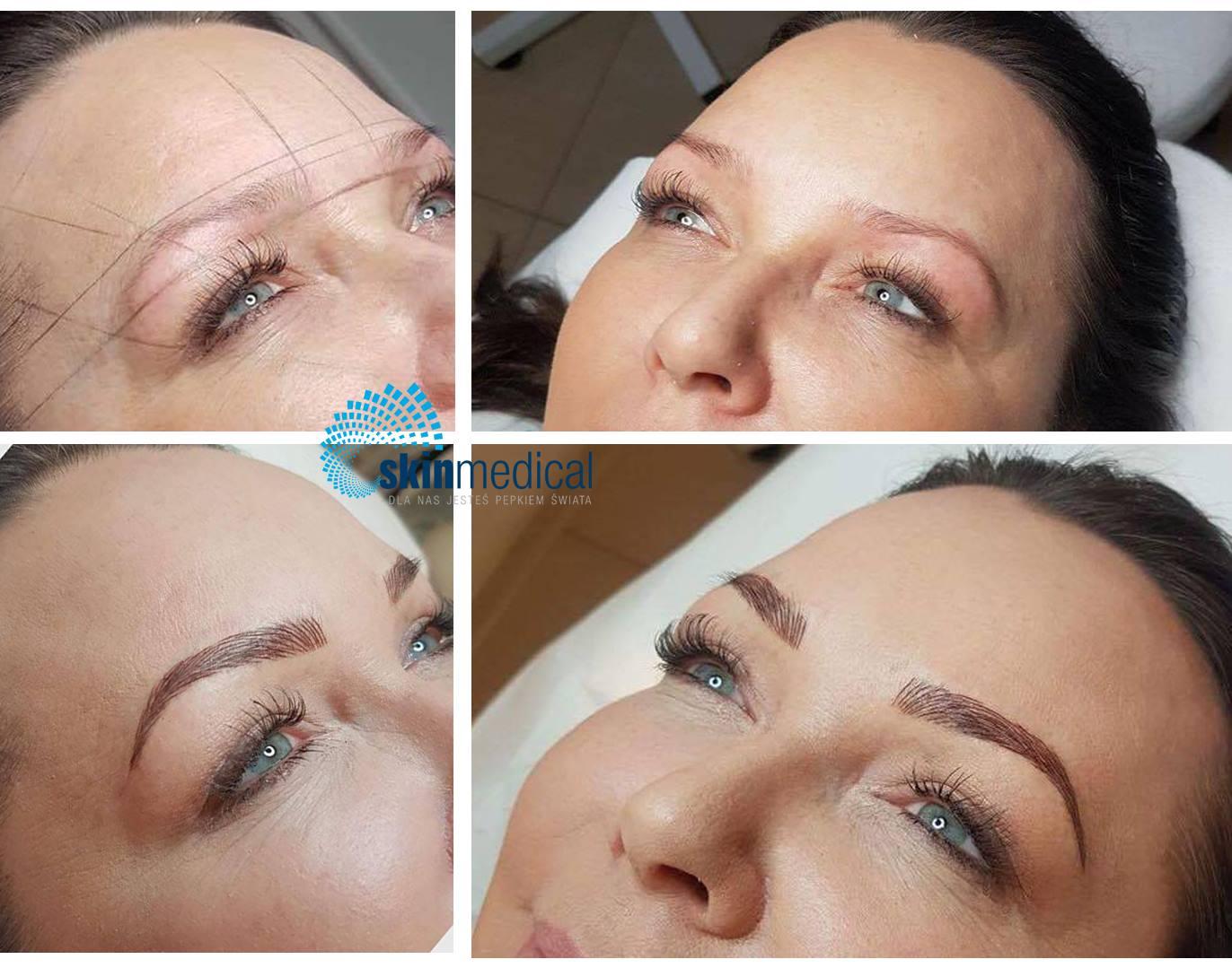 Skinmedical Microblanding Makijaż Permanentny Brwi Metodą